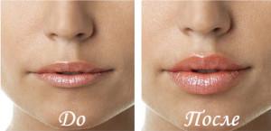результат-увеличения-губ