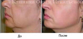 Мезотерапия кожи головы Киев