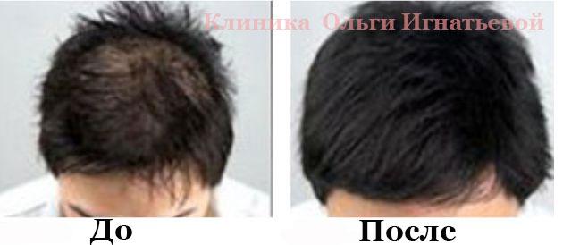 Форум мезотерапия отзывы для волос