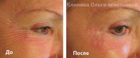 Мезотерапия волос в Киеве