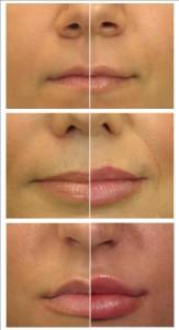 Как накачать губы силиконом