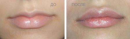 Накачать губы Киев цена