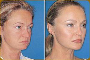 скулы фото до и после