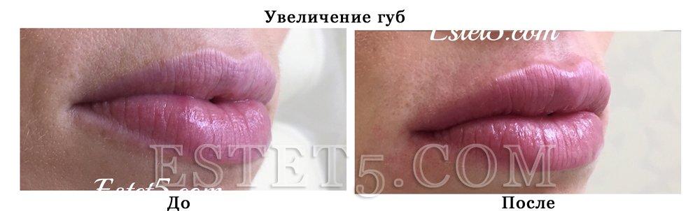 Накачать губы Гиалуроновой кислотой Киев цена