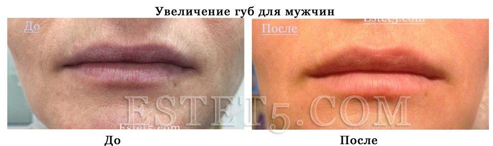 Подкачать губы Киев