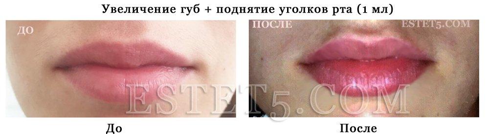 Гель в губы Киев