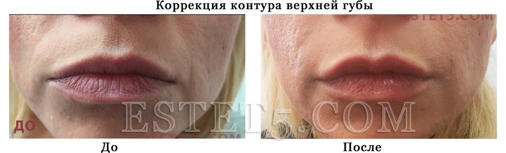 Накачать губы Киев
