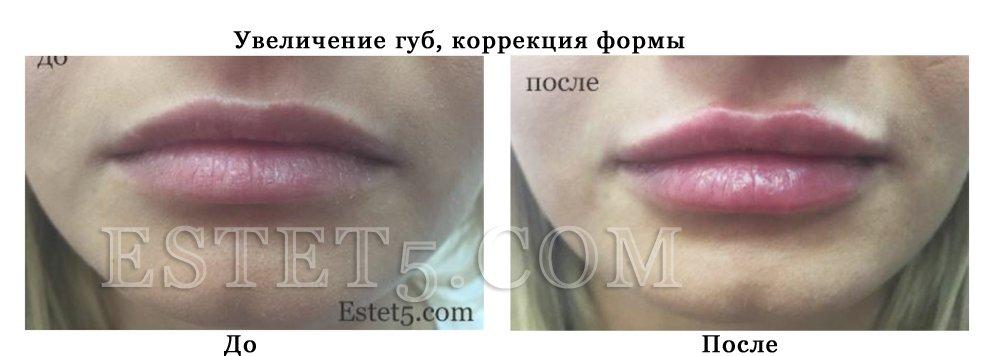 Накачать губы стоимость Киев