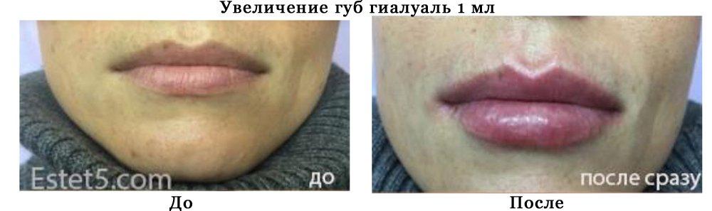 Силикон губы цена Киев