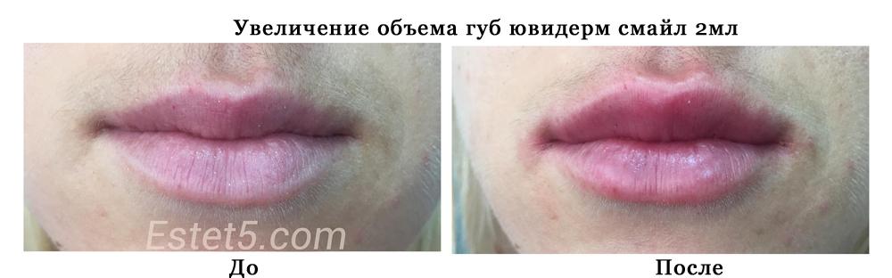 Подкачать губы