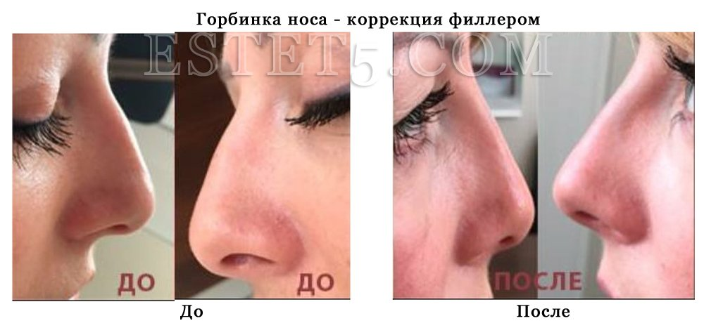 Безоперационная коррекция формы носа Киев