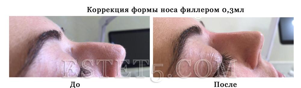 Коррекция носа без операции Киев