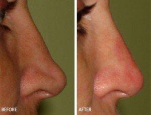Коррекция формы носа без операции Киев